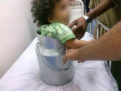 بالصور إنقاذ طفلة علقت داخل قدر حليب في مكة