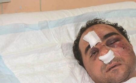 المصاب المصري بعد خروجه من غرفة العناية المركزة(محمد هاشم)